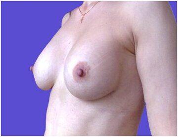 implanty_ptoz_posle